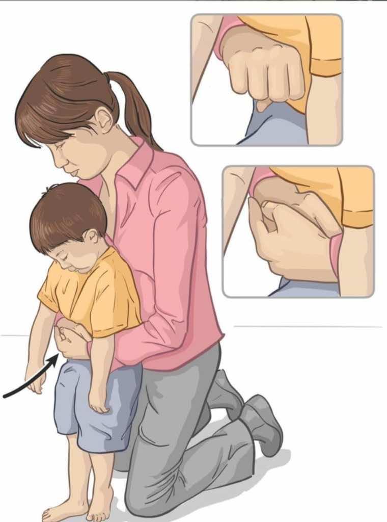 الضغطات على البطن في الأطفال الأكبر من عمر سنه