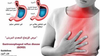السبب الرئيسي لحدوث هذا المرض هو ضعف العضلة العاصرة الدائرية بأسفل المرئ (LES) وتأثر وظيفتها في منع أحماض المعدة من الارتداد للأعلى