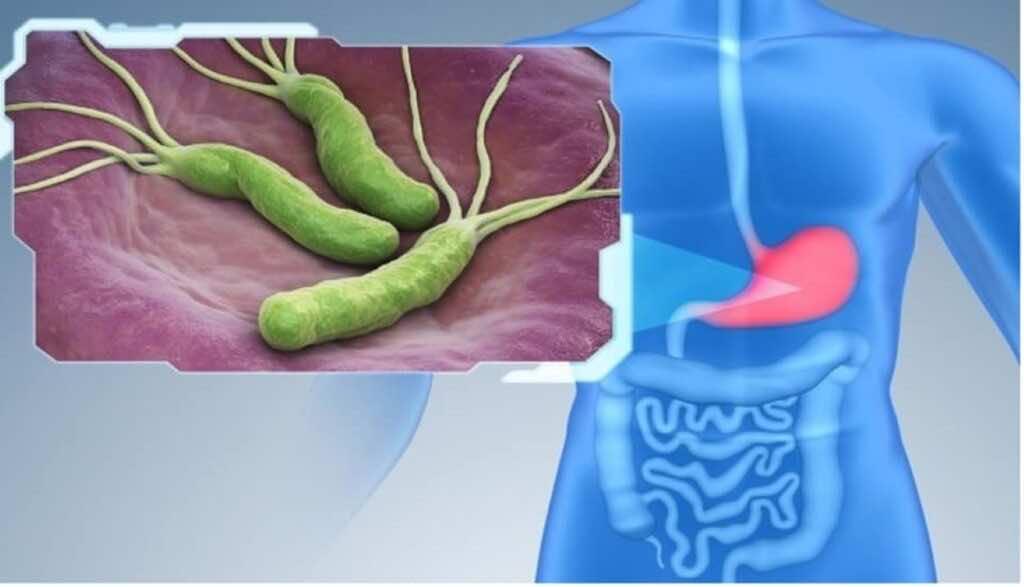 جرثومة المعدة-Helicobacter pylori