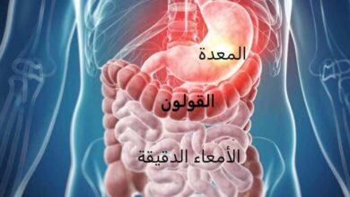 يسبب داء كرون الالتهاب في أي جزء من القناة الهضمية بداية من الفم إلى المستقيم والنهاية السفلى للقناة الهضمية