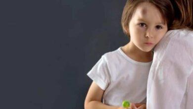 إصابات الرأس في الأطفال.. ما هو التصرف الصحيح؟