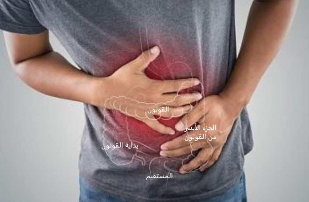 الإسهال المزمن وآلام البطن من أهم أعراض التهاب القولون التقرحي