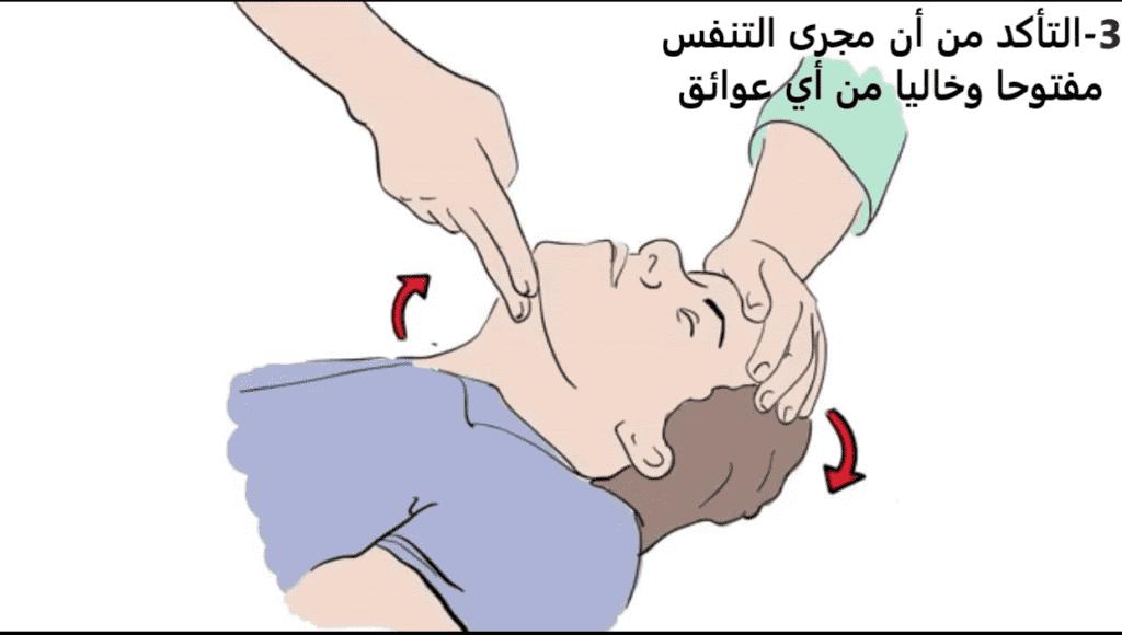 """خطوات""""الإنعاش القلبي الرئوي باليدين وحدهما"""" (Hands only CPR). صورة رقم 3"""