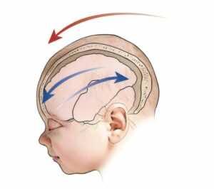 حدث الارتجاج نتيجة لارتطام مفاجئ بالرأس يسبب اهتزازا للمخ داخل عظام الجمجمة باتجاه الأمام والخلف
