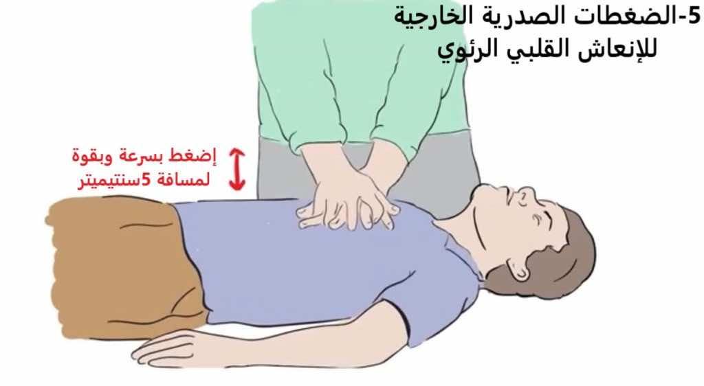"""خطوات""""الإنعاش القلبي الرئوي باليدين وحدهما"""" (Hands only CPR). صورة رقم 6"""