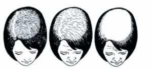 تساقط الشعر النسائي النمطي