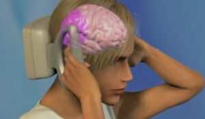 التنبيه المغناطيسي عبر الدماغ (transcranial magnetic stimulation (TMS) لعلاج الصداع النصفي