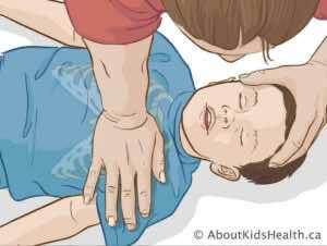الضغطات الصدرية في طفل عمره أكبر من عام (بكعب راحة اليد)