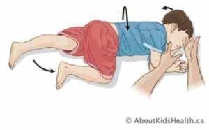 وضع الإفاقة في طفل عمره أكبر من عام: على جانبه مع إمالة الرأس قليلا للخلف ورفع الساق العلوية قليلا