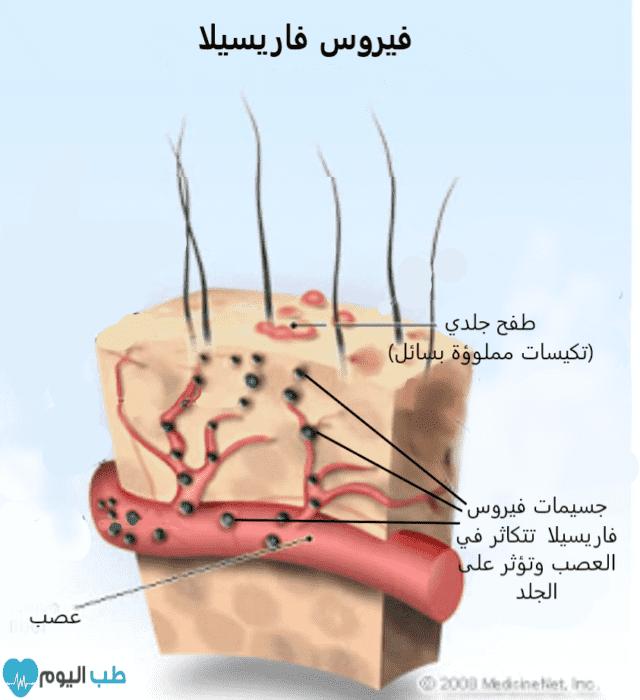 يحدث الحزام الناري عندما يتنشط فيروس فاريسيلا المختبئ في الجسم لسبب ما، و يبدأ بالتكاثر في عصب من أعصاب الجسم ومنطقة الجلد المحيطة به.