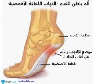 ألم باطن القدم - التهاب اللفافة الأخمصية