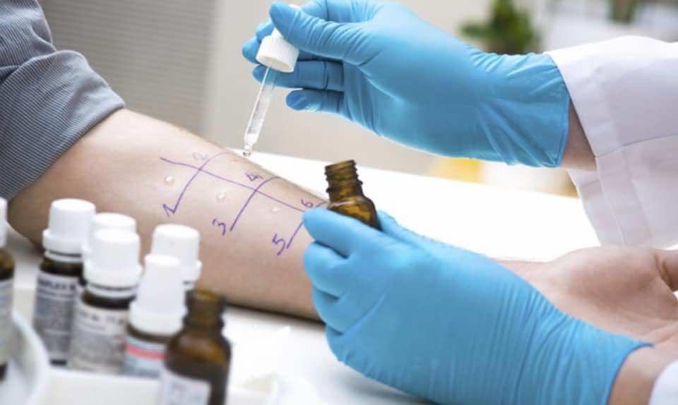 اختبار الحساسية عن طريق الوخز بالجلد