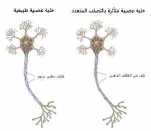 """تأثر الخلية العصبية في مرض التصلب المتعدد """"التصلب اللويحي"""""""