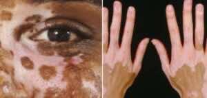 البهاق غير القطاعي non-segmental vitiligo (على اليمين)، والبهاق القطاعي segmental vitiligo (على اليسار)