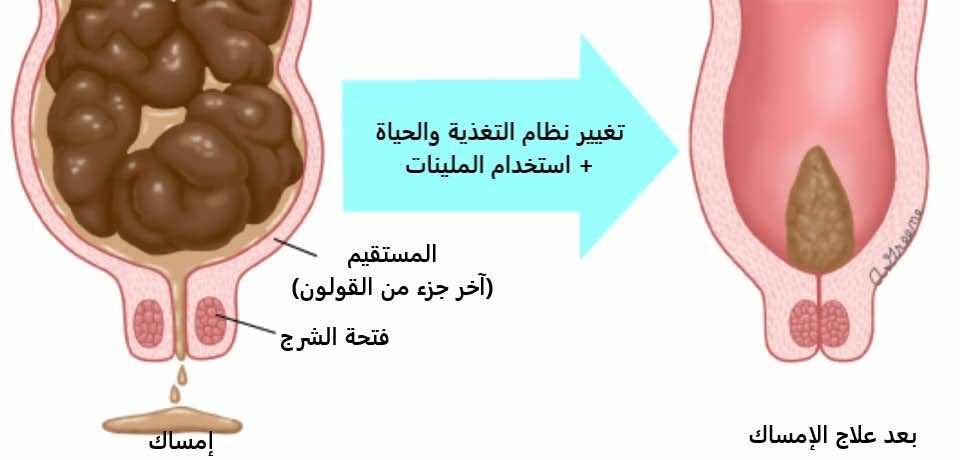 حالة المستقيم مع الإمساك وبعد علاج الإمساك