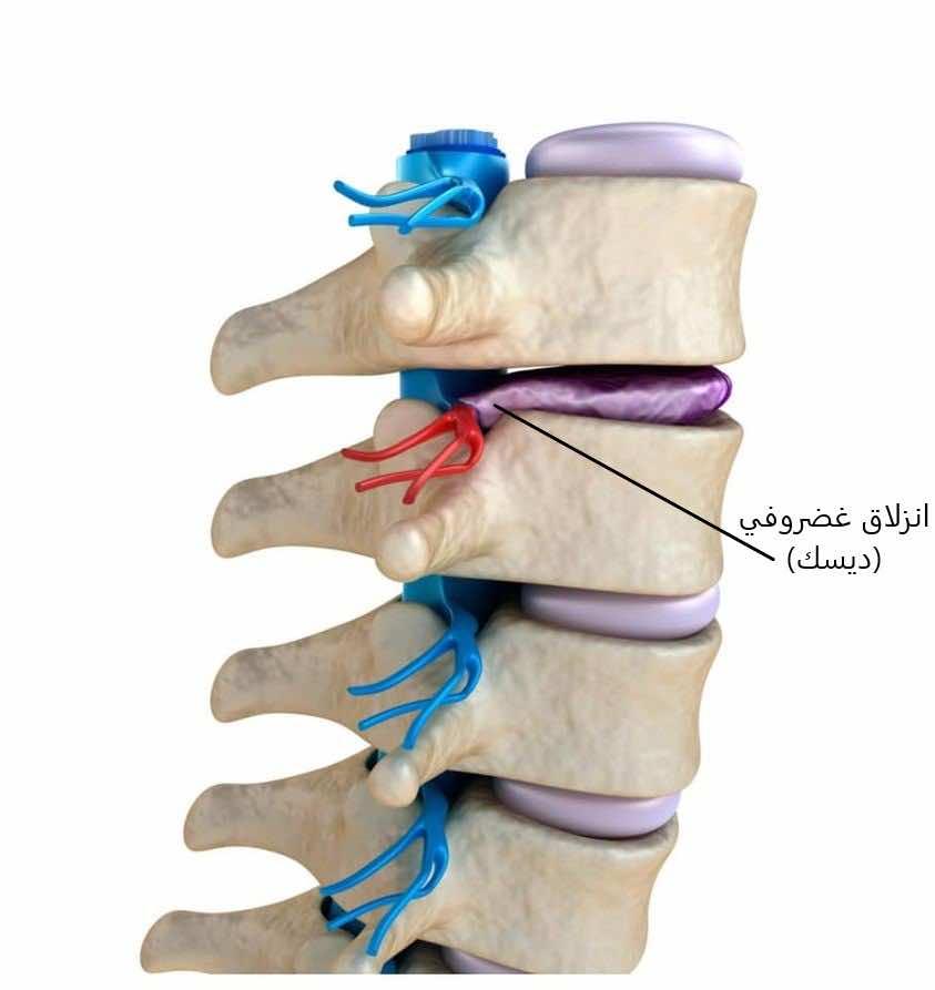 علاج الانزلاق الغضروفي (الديسك) لا يحتاج لجراحة في أغلب المرضى