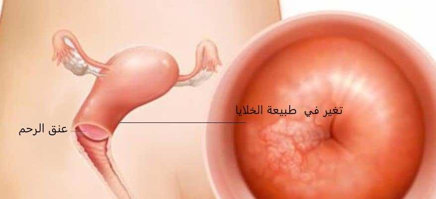 تغيرات في خلايا عنق الرحم
