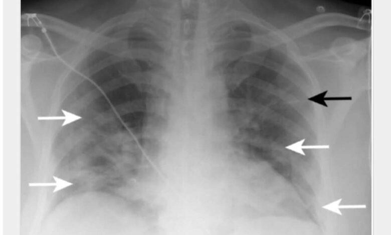 شرح مبسط لتغيرات أشعة الصدر ودورها في تشخيص عدوى كوفيد-19 بحسب التوصيات البريطانية: أشعة صدر لمريض كوفيد في يوم أول يوم من دخوله للمستشفى bmj