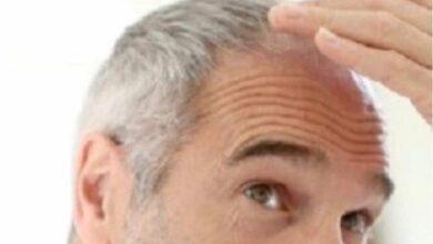 هل يرتبط ظهور الشعر الأبيض مبكرا باحتمالات أكبر لأمراض القلب؟