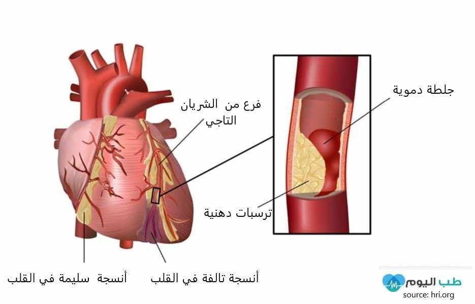 كيف تحدث امراض الشريان التاجي والأزمة القلبية
