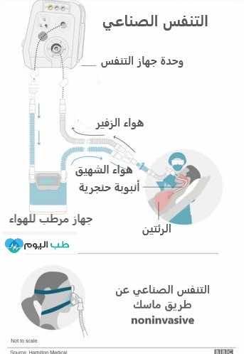 التنفس الصناعي
