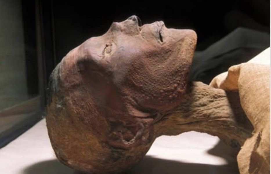 مومياء الملك رمسيس الخامس يظهر عليها آثار بثور الجدري