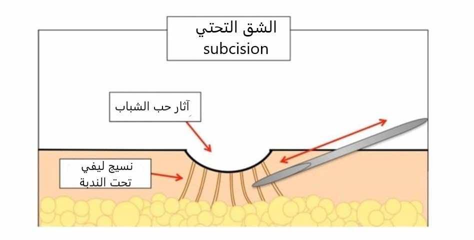 عملية الشق التحتي subcision
