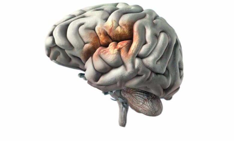 3 أعراض أساسية لاشتباه السكتة الدماغية تستلزم اللجوء للمساعدة الطبية العاجلة.. فما هي؟