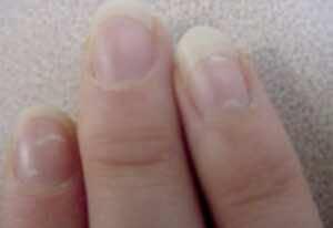 خطوط ونقاط بيضاء متناثرة ليكونيكيا leukonychia