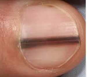 خطوط طولية ملونة أو مصبوغة في الأظافر