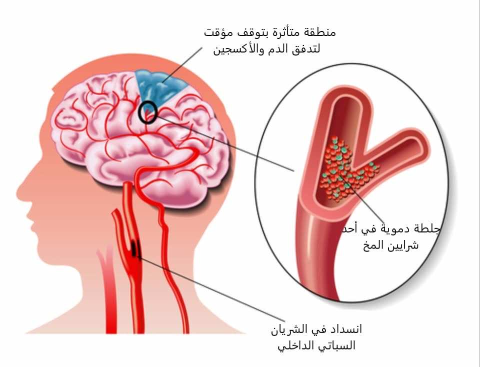 كيف تحدث السكتة الدماغية الصغرى؟