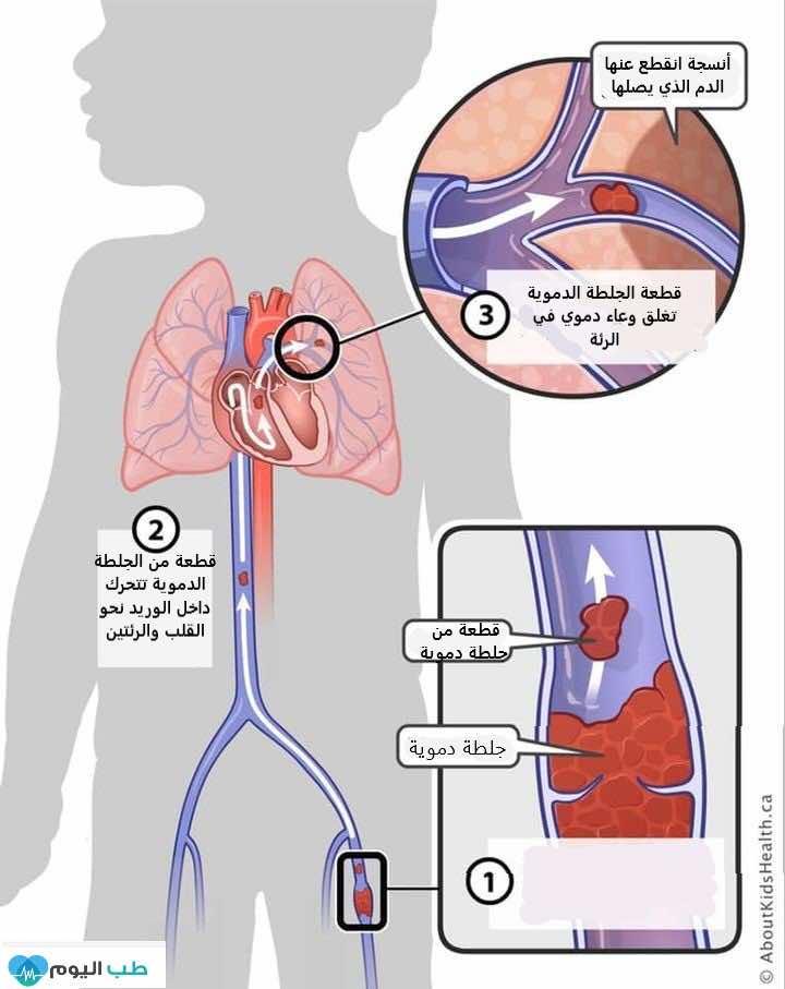 كيف تسبب الجلطة الدموية في الساق DVT جلطة رئوية PE؟