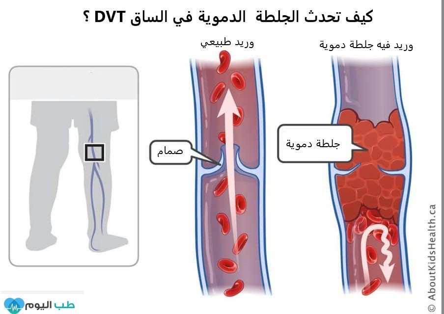 كيف تحدث الجلطة الدموية DVT؟