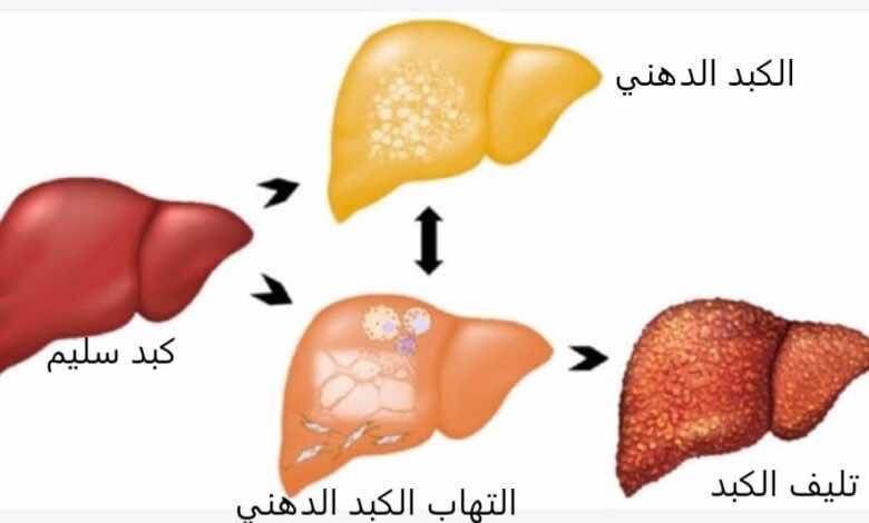 الكبد الدهني مرض صامت لكن يمكنه أن يسبب التهاب الكبد ومضاعفاته فما الأعراض والعلاج؟