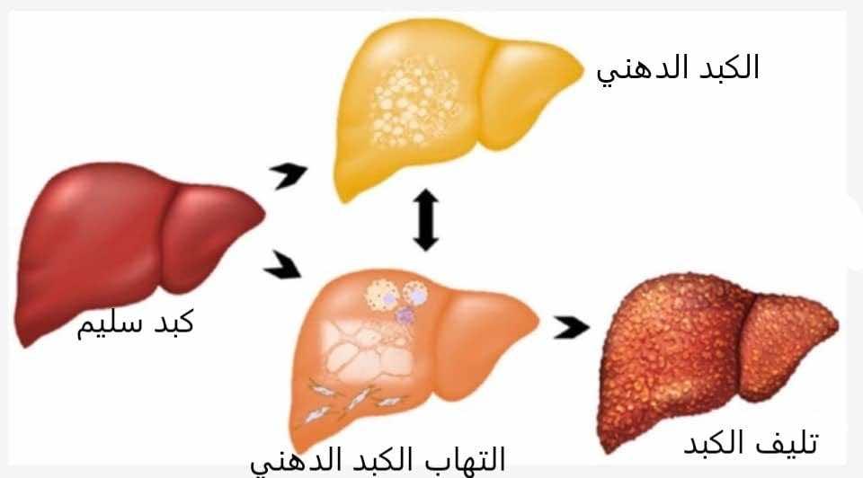 الكبد الدهني مرض صامت لكن يمكنه أن يسبب التهاب الكبد ومضاعفاته فما الأعراض والعلاج طب اليوم