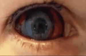 تسمى عدوى فيروس إيبولا أحيانا بحمى المقلة النازفة حيث يمكن أن يسبب في مراحله المتأخرة نزيفا بالعين
