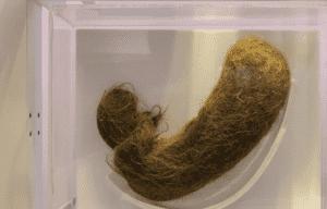 كرة شعر تم استخراجها من معدة فتاة مصابة بمتلازمة رابونزل