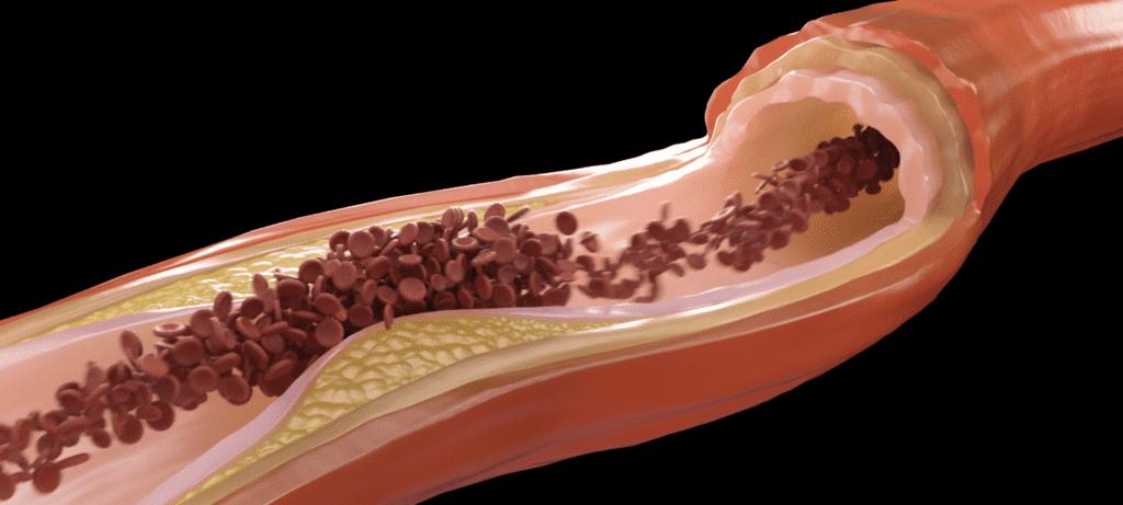 وعاء دموي تظهر فيه جلطة دموية سببها تكون الترسبات الدهنية التي تجمعت عليها مكونات الجلطة