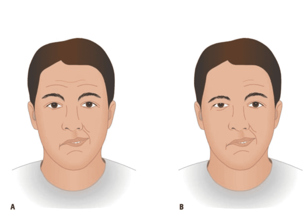 الفرق بين تأثر العصب السابع الطرفي الذي يحدثنتيجة التهاب بعد نزلات البرد أو بدون سبب واضح  في الشكل B وبين التأثر المركزي في العصب السابع الذي يحدث نتيجة السكتة الدماغية في الشكل A