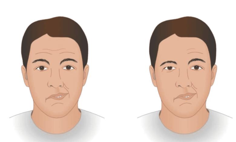 ما الفرق بين العصب السابع و تأثير السكتة الدماغية الخطيرة على الوجه؟