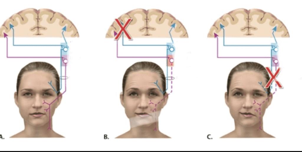 A: التغذية العصبيه لنصف الوجه الأيسر من خلال العصب السابع التي توضح  تغذية مزدوجة من فصي المخ للجزء العلوي فقط.  B: تأثر مركزي في العصب السابع يوضح سبب عدم تأثر عضلات الجزء العلوي من جانب الوجه بسبب توفر التغذية المزدوجة.  C : تأثر طرفي في العصب السابع يؤثر على عضلات الجزء العلوي والسفلي