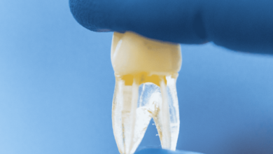 فيزيتا مجانية | 6 عادات خاطئة قد تدمر أسنانك بحسب خبراء طب الاسنان