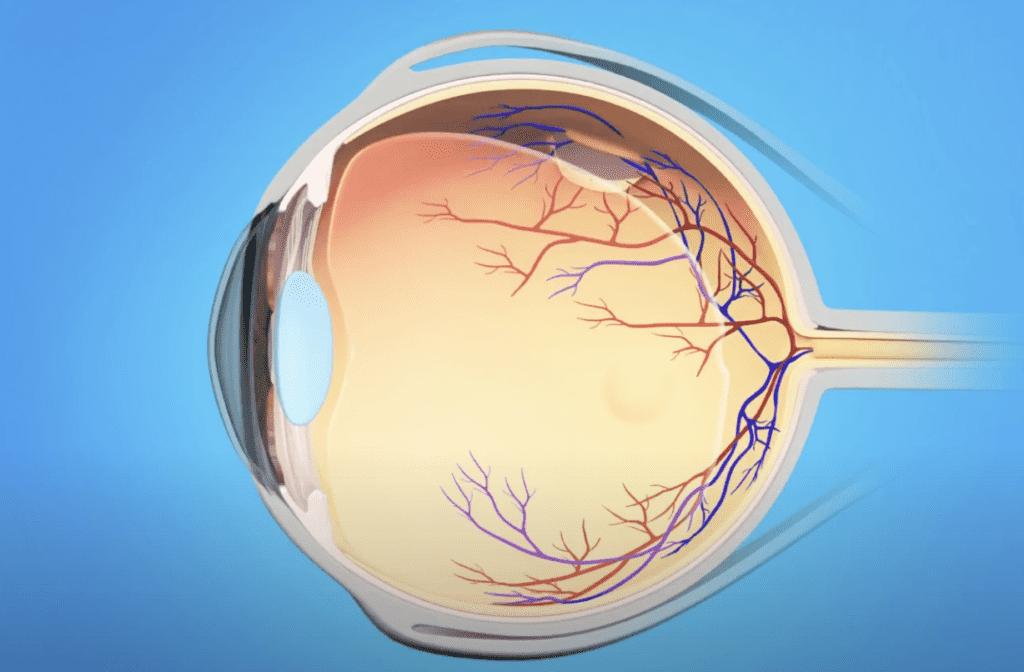 تمزق في الشبكية retinal tear