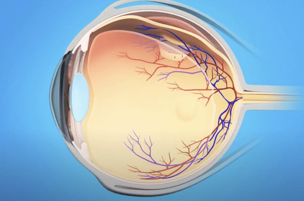 انفصال الشبكية retinal detachment.