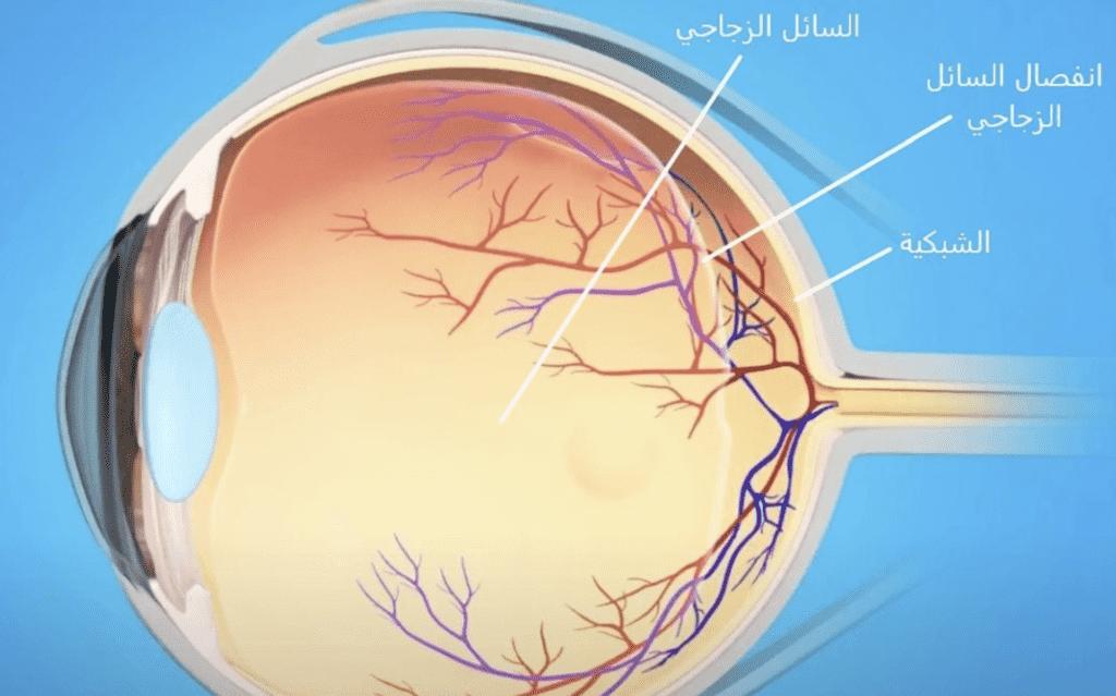 انفصال السائل الزجاجي يظهر في ابتعاده عن خلف العين EyeSmart — American Academy of Ophthalmology