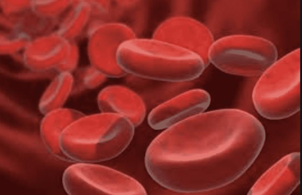 تسبب انيميا نقص فيتامين ب12 زيادة في حجم كرات الدم الحمراء