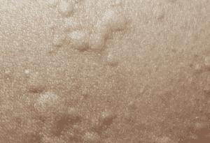 طفح جلدي شبيه بالأرتيكاريا - اعراض كورونا يوم بيوم - اعراض جلدية