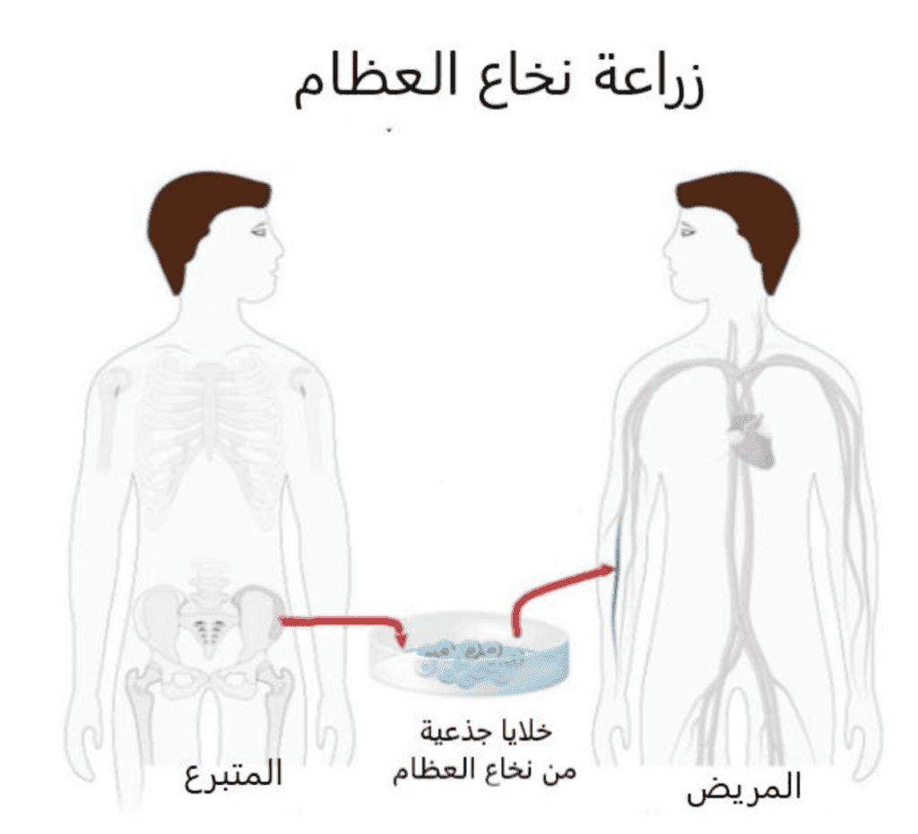 زراعة النخاع العظمي-زراعة الخلايا الجذعية