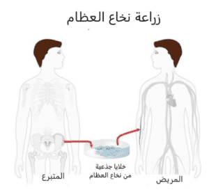 زراعة نخاع العظم - علاج انيميا البحر المتوسط