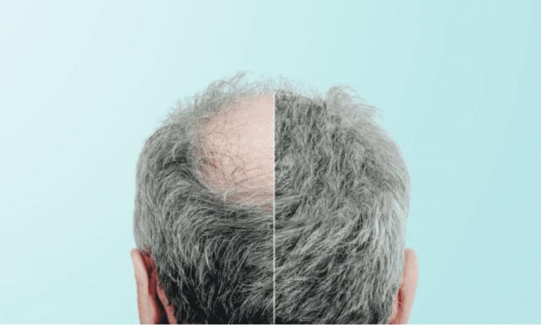 زراعة الشعر في بريطانيا : نوعان من العمليات.. فكم التكلفة؟ وما هي المخاطر؟ - تساقط الشعر